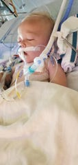 Barrett Fairchild of Waterloo has been diagnosed with acute respiratory distress after inhaling citronella fluid.