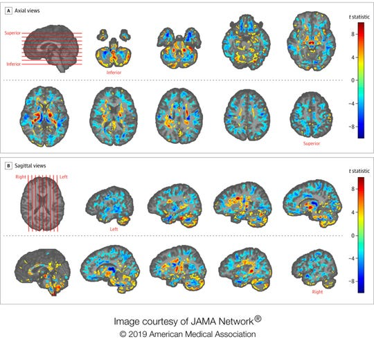 This image provided by the American Medical Association in July 2019 shows the amount of differences between brain scans of patients, U.S. diplomats who developed concussion-like symptoms after working in Cuba, and a control group.