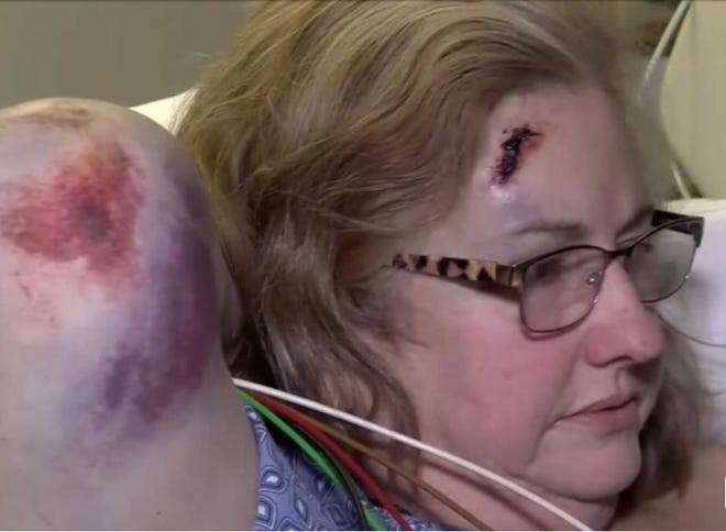 Charylyn Daves suffered a broken femur and a head laceration after being hit by a drunk driver on March 6, 2018, while she was working as a nurse on a Cathedral City Police Department crime scene.