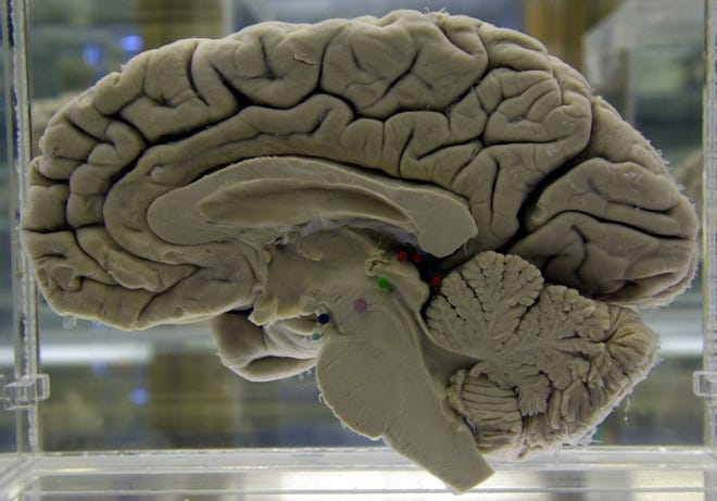 A section of a preserved human brain
