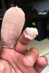 Alek Loudakis' left index finger, bandaged, and the tip of it on his middle finger, after he extracted it from inside the lobster's mouth that bit him.