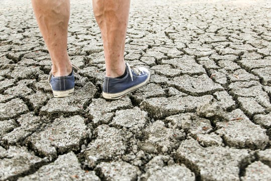 Varicose veins can sometimes be a sign of a more serious problem.
