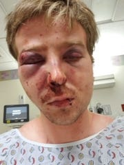 Jarrett Leaman of York alleges Harrisburg Police and Dauphin County correctional officers beat him repeatedly while he was unconscious at the Dauphin County Booking Center.