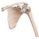 Arthrex announces FDA clearance of 'game changing' total shoulder replacement system