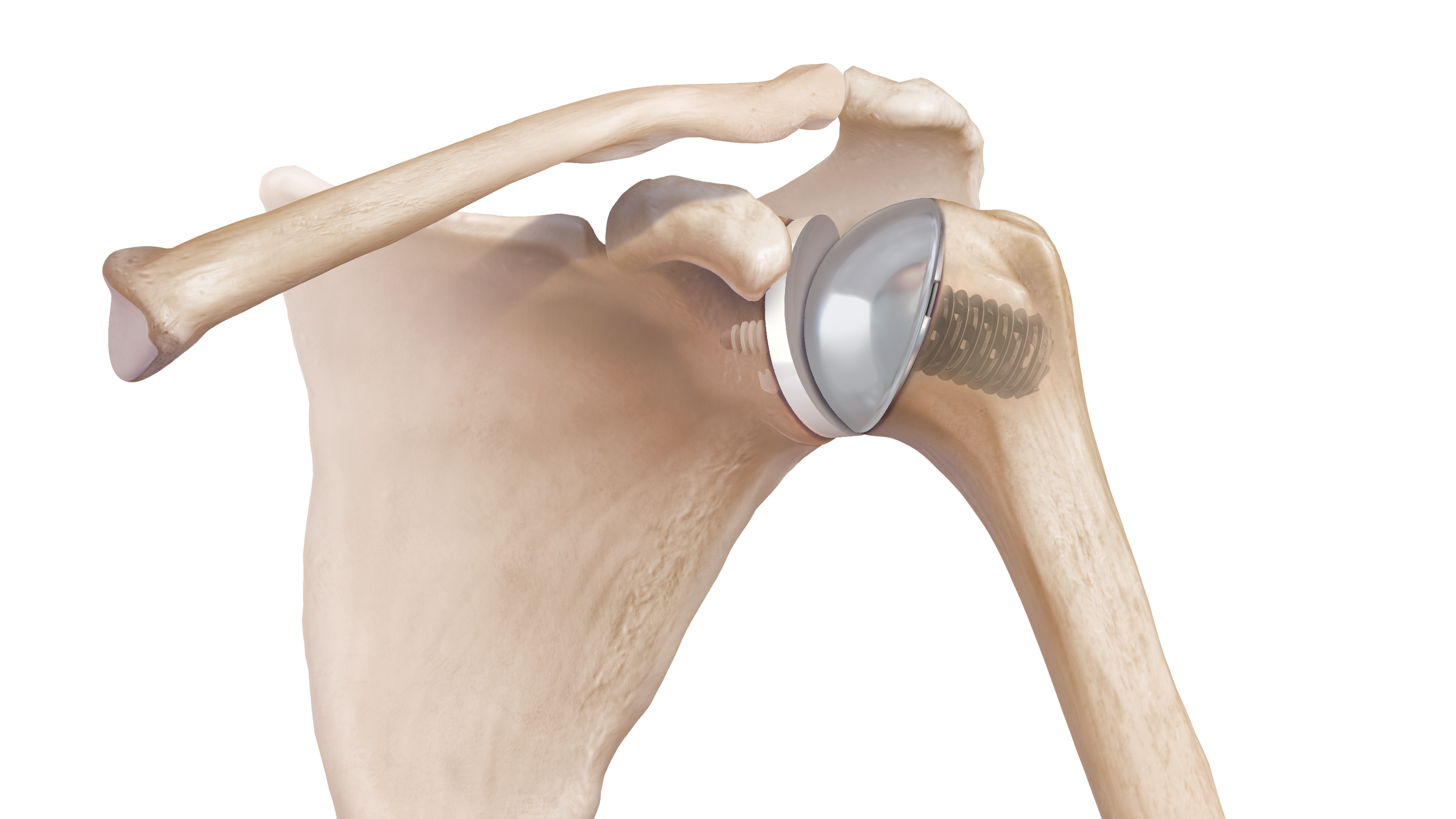 Arthrex says FDA clears total shoulder replacement system