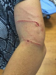 Doreen Latargia Entrup was attacked by a coyote while walking in Mahwah on Friday, Aug. 2, 2019.