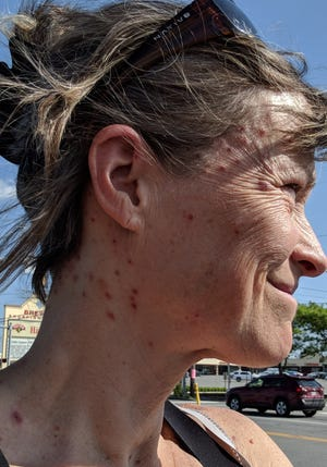 Prof. Celia Evans, an ecologist at Paul Smith's College in Adirondack State Park in upstate New York, shows dozens of black fly bites she sustained while working in the woods of Maine in July.