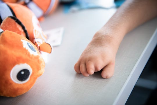 Lily Larimer, 8, sits with her collection of Nemo stuffed animals in a laboratory at the University of South Carolina School of Medicine Greenville Thursday, August 8, 2019. Larimer, who was born with a birth defect that left her with a limb deficiency on her right hand, has been learning to use a 3D printed hand created by U of SC medical students.