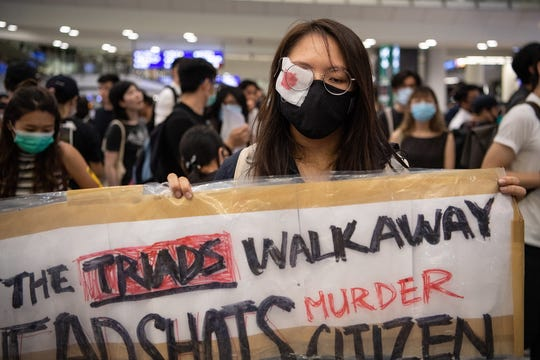A woman wears an eyepatch to protest police violence during a sit-in at Hong Kong Chek Lap Kok International Airport, Hong Kong, China, 13 August 2019. EPA-EFE/Laurel Chor