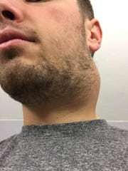 Kevin Ludwig, 28, had a benign tumor removed from his neck a couple years ago. It prevented him from singing and performing for about seven months.
