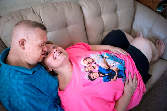 Jimmy and Kelly Wilson rest on the couch together on July 31, 2019, at their home in Janesville, Wis. Jimmy, who has Down Syndrome, married Kelly 25 years ago.