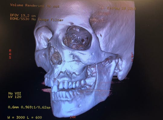 A medical scan of Anne Marie Miller's skull shows her cracked bone and dislodged tooth after she was struck by a foam baseball bat in a freak accident in the Nashville area.