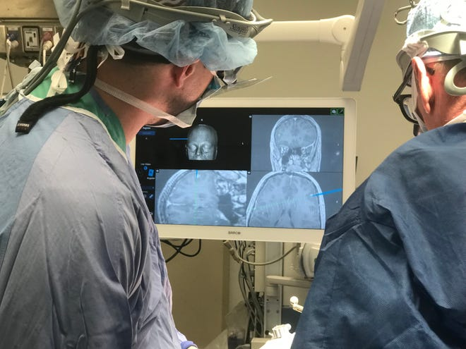 The surgical team at Unity Hospital uses the 7D System to help guide a cranial procedure.