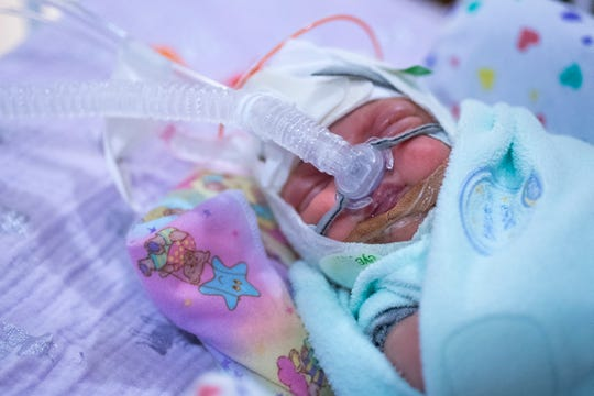 Delaney Drew rests in the neonatal intensive care unit (NICU) at Riley Children's Hospital in Downtown Indianapolis Wednesday, Aug. 21, 2019. The Monoamniotic-Monochorionic twins (aka MoMo twins or Mono Mono twins) shared the same amniotic sac and placenta. The condition only occurs in about one-percent of identical twin births.