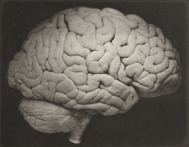 This 1885 photo shows a side view of a human brain.