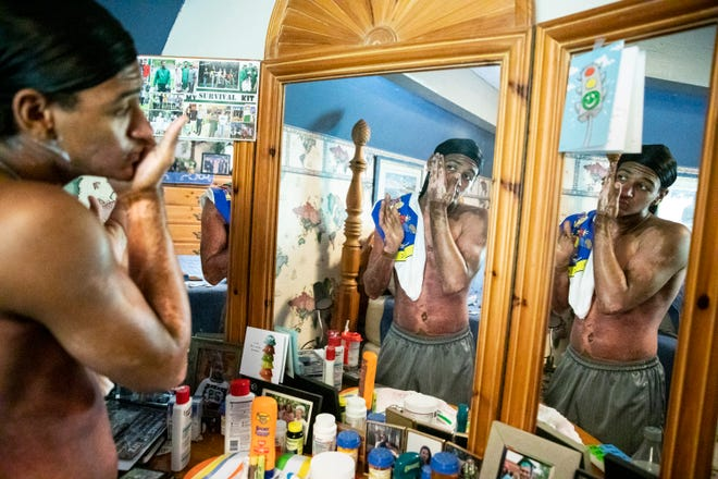 Huntington High School graduate and then future Ohio University Bobcat Canaan Knoles puts lotion on his face at his grandparent's house as part of his daily regimen due to the extensive second degree burns he received due to a tragic accident at a camp he worked at earlier in the summer on August 21, 2019, in Scioto Township, Ohio.