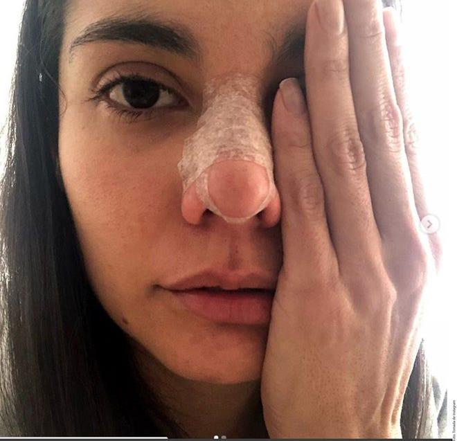 Por medio de redes sociales, Eileen Moreno reveló las heridas y moretones sufridos tras la supuesta golpiza recibida en julio pasado en la Ciudad de México.