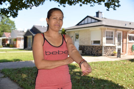 La inmigrante indocumentada Griselda Saldaña muestra su brazo hinchado por la diálisis que recibe.