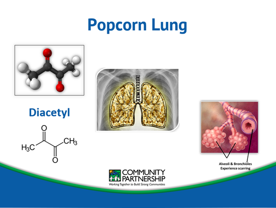 Diacetyl (found in many e-liquids with sweet flavors) and a closely related compound, 2,3-pentanedione, cause popcorn lung. This irreversible respiratory disease was named after the factory workers who inhaled artificial butter flavor while working, causing the small airways in the lungs to become irreversibly scarred and constricted, impairing breathing.