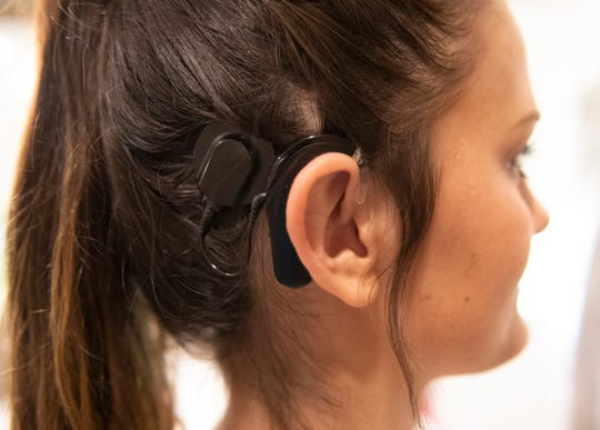 "J.L. Mann's Lauren McCutcheon (7) wears the external piece of her cochlear implant, which her family call her ""ear"", while at a teammate's house Wednesday, August 28, 2019."