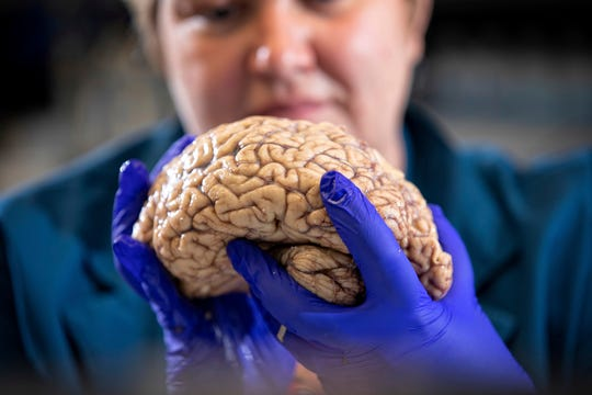 "In this Aug. 14, 2019 photo provided by the University of Kentucky, Donna Wilcock, of the Sanders-Brown Center on Aging, holds a brain in her lab in Lexington, Ky. She says that contrary to popular perception, ""there are a lot of changes that happen in the aging brain that lead to dementia in addition to plaques and tangles."""