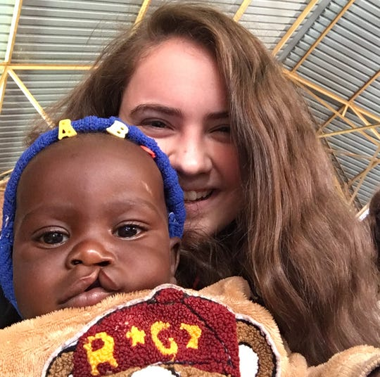 Mount Saint Mary Academy Senior Christine Polakiewicz shares Operation Smile mission trip experience in Africa.