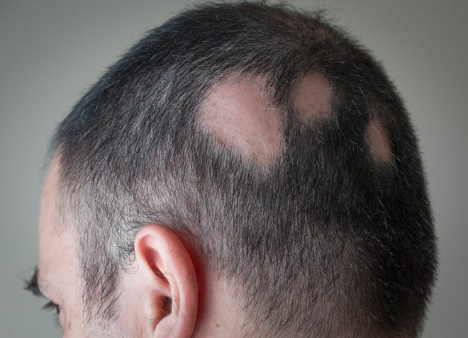 Alopecia areata is when there is a sudden loss of hair on the body that may be only one circular bald spot or many bald spots.
