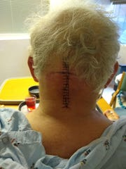 Jeff Hempel, 69, received 19 stitches after brain surgery at the Mayo Clinic in this undated photo.