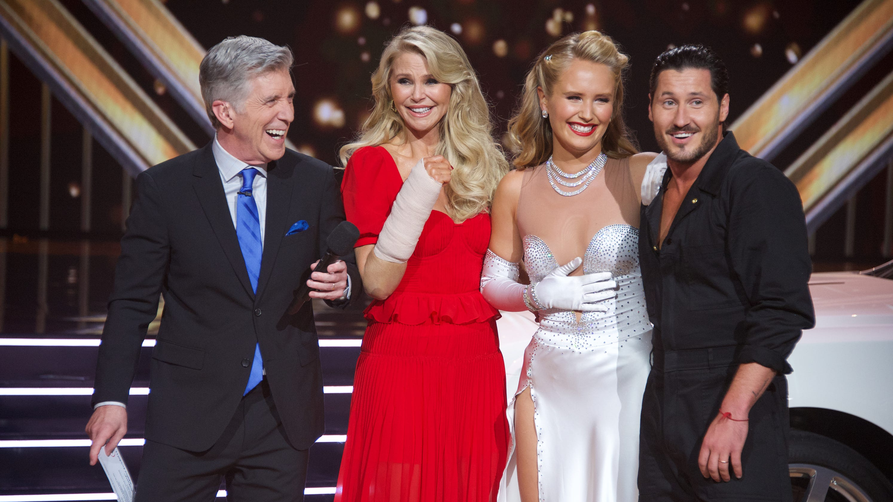 Christie Brinkley shows bruises after Wendy Williams claims she faked 'DWTS' injury