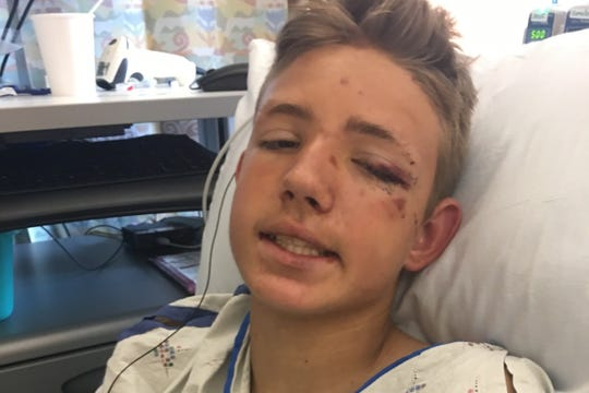 The community is rallying behind a 13--year-old boy who survived a head-on crash Sunday on I-84.