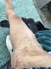 Ann Robinson Burks said she lives in Louisville's Beechmont neighborhood and found out Wednesday, Sept. 18, 2019, she was infected with the West Nile virus. She had rashes crop up on her legs and body over the past three weeks.