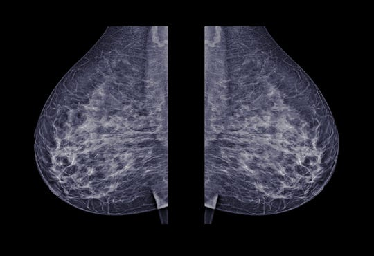 Digital breast tomosynthesis, also known as 3D mammography, takes hundreds of images of a woman's breast.