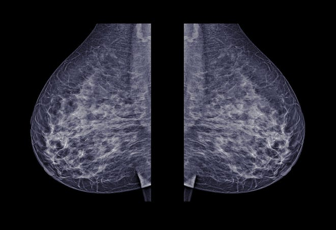 What You Need To Know Before Choosing A 2d Or 3d Mammogram