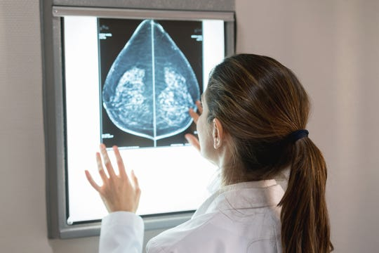 Mammograms are the screening tool used to detect breast cancer. There is debate now about whether 2D or 3D mammography is better.