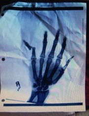 X-ray of Yamon Figurs' hand after suffering a broken finger after catching passes from Lions quarterback Matthew Stafford.