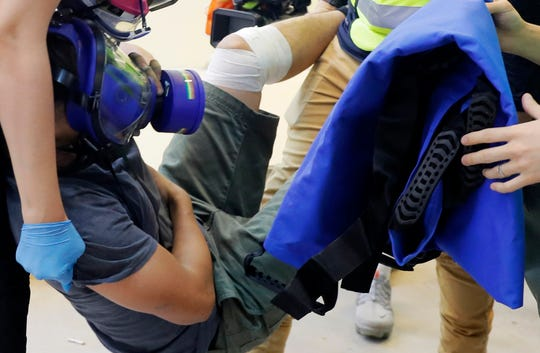 FILE - In this Sept. 15, 2019, file photo, an injured man is carried away during protests in Hong Kong. With Hong Kong's summer of protests now stretching into the fall and clashes becoming increasingly ferocious, medical professionals have quietly banded together to form the Hidden Clinic and other networks to secretly treat the injuries of many young demonstrators who fear arrest if they go to government hospitals.