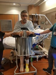 Bernie Stewart, 59, stands for the first time with assistance after contracting flesh-eating bacteria while kayak fishing in Big Lagoon on Aug. 31. Stewart has to learn how to walk again, but doctors were able to save his leg.