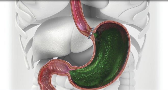 A flexible ring of small magnets helps keep the base of the esophagus closed. When patients swallow, the band temporarily opens to allow food to pass through, but closes before acid makes its way into the esophagus.