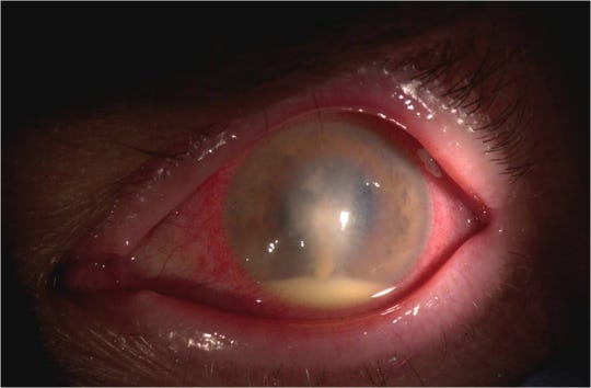 This is a picture of a contact lens that has an infectious keratitis.