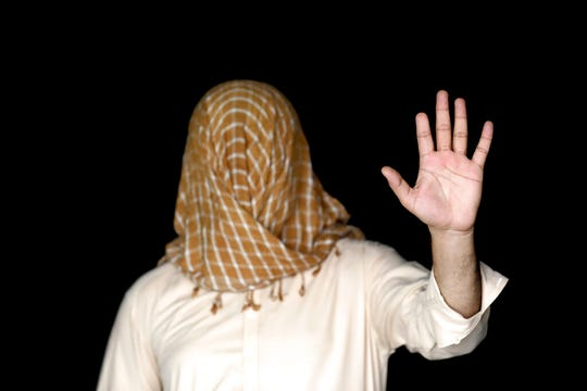 In this Thursday, Sept. 26, 2019 photo, Mohammad hides his face to protect his identity as he shows his hand with part of the index finger missing, in Kabul, Afghanistan. Torn between fear, frustration and a sense of duty, Mohammad, whose index finger was chopped off by Taliban after he voted in presidential elections five years ago, is undecided about defying insurgent threats to vote in Saturday's polls to choose a leader for another five years.