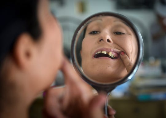 Gina Diaz-Nino, 39,  looks at her teeth, ravaged by years of drug abuse and injury, which she says now harms her ability to get a job, interact with people and gives her low self-esteem.