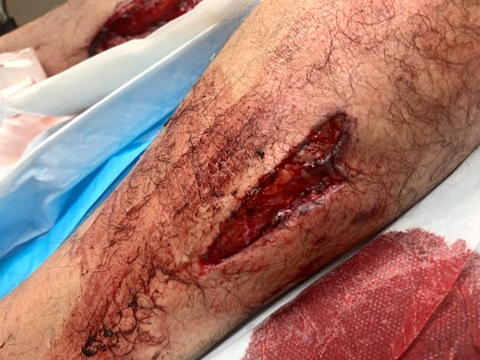 One of the leg wounds James Dean received during Monday's wild hog attack.