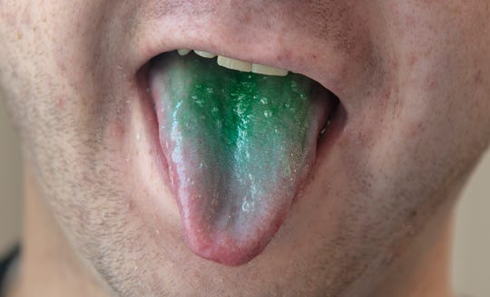 A green tongue is seen in this photo illustration. Police officers have alleged for decades in some DUI cases that people who've recently smoked marijuana had green tongues. But there's no scientific evidence that police can point to that shows marijuana causes someone's tongue to turn green.