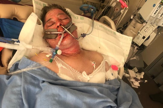 """Paul """"PJ"""" Hall rests at a hospital while trying to recover from severe burn injuries."""