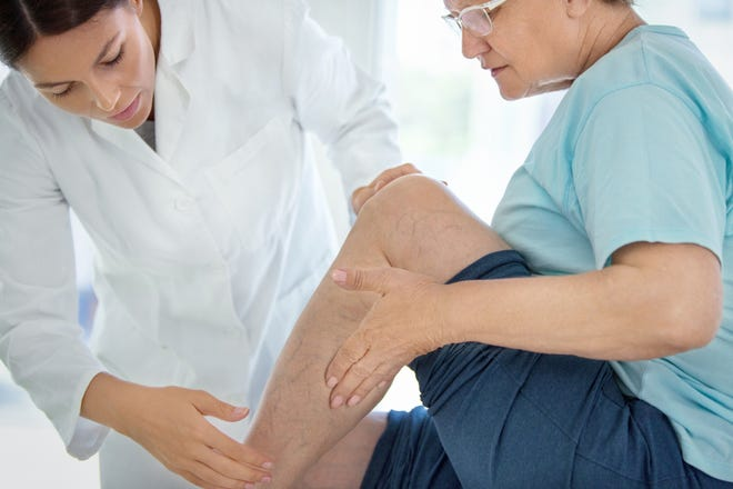 Vein treatments have evolved. Here's how.