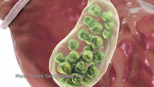 gallbladder with gallstones