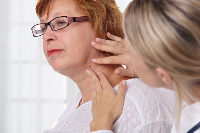 The face, head and neck are where the majority of skin cancers occur.