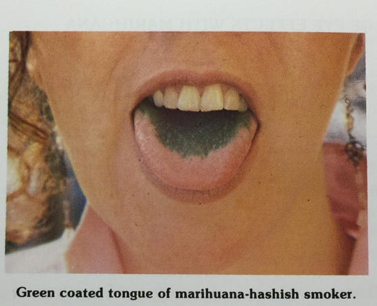 "Dr. Forest Tennant Jr., a physician in California who wrote a guide called ""Identifying the Marihuana User"" in 1986, included this picture in the handbook."