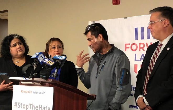 Mahud Villalaz, 42, of Milwaukee gestures to the second-degree burns on his face Saturday at a news conference one day after a man threw acid at him outside a restaurant on Milwaukee's south side. He is joined by, from left, state Rep. JoCasta Zamarripa, his sister Priscilla Villalaz, and Forward Latino leader Darryl Morin.