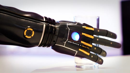 "The ""Hero Arm"" from Open Bionics is ""multi-grip"" and will respond to how Isabella tenses the muscles in her arm."